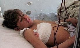 A wounded Afghan boy in a hospital in Kunar province after a Nato air strike left 10 civilians dead